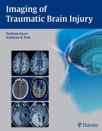 Imaging of Traumatic Brain Injury