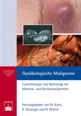Gynäkologische Malignome