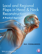 Local and Regional Flaps in Head and Neck Reconstruction: A Practical Approach