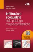 Infiltrazioni ecoguidate nelle patologie muscoloscheletriche