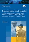 Deformazioni morfologiche della colonna vertebrale