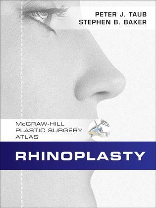 Rhinoplasty: McGraw-Hill Plastic Surgery Atlas
