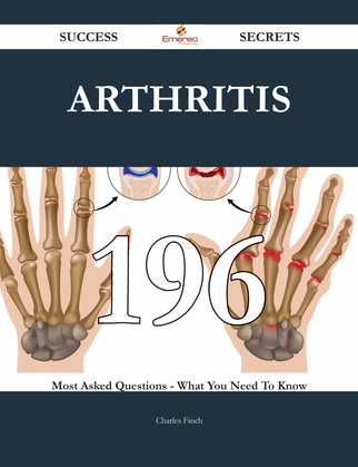 Arthritis 196 Success Secrets - 196 Most Asked Questions On Arthritis - What You Need To Know