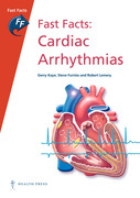 Fast Facts: Cardiac Arrhythmias
