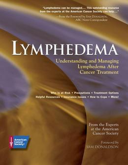 Lymphedema: Understanding and Managing Lymphedema After Cancer Treatment