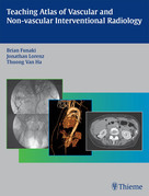 Teaching Atlas of Vascular and Non-vascular Interventional Radiology