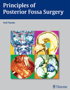 Principles of Posterior Fossa Surgery