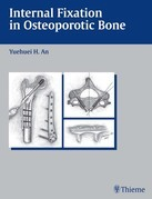 Internal Fixation in Osteoporotic Bone
