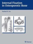 Internal Fixation in Osteoporotic Bone