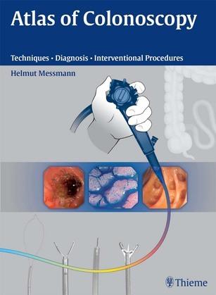 Atlas of Colonoscopy: Examination Techniques and Diagnosis
