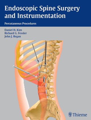 Endoscopic Spine Surgery and Instrumentation