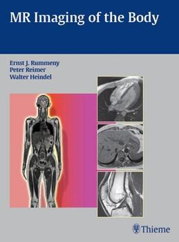 MR Imaging of the Body
