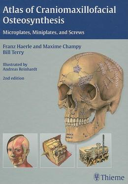 Atlas of Craniomaxillofacial Osteosynthesis: Microplates, Miniplates, and Screws