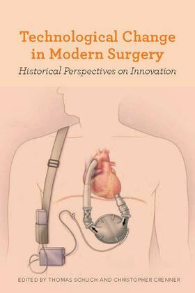 Technological Change in Modern Surgery: Historical Perspectives on Innovation