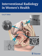 Interventional Radiology in Women's Health
