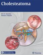 Cholesteatoma