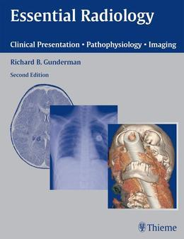 Essential Radiology: Clinical Presentation · Pathophysiology · Imaging