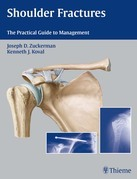 Shoulder Fractures: The Practical Guide to Management
