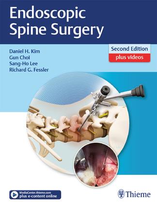 Endoscopic Spine Surgery