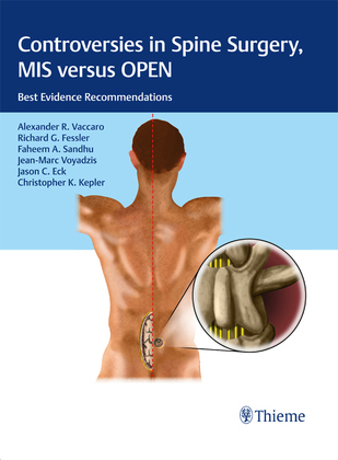 Controversies in Spine Surgery, MIS versus OPEN