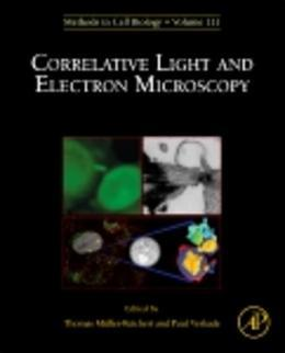Correlative Light and Electron MIcroscopy