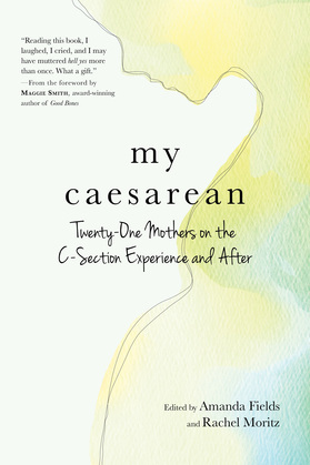 My Caesarean