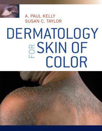 Dermatology for Skin of Color