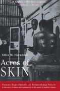 Acres of Skin: Human Experiments at Holmesburg Prison