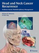 Head and Neck Cancer Recurrence: Evidence-based, Multidisciplinary Management