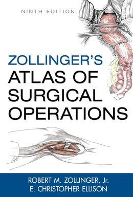 Zollinger's Atlas of Surgical Operations, Ninth Edition
