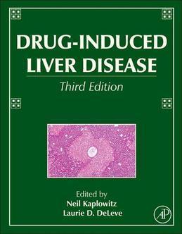 Drug-Induced Liver Disease