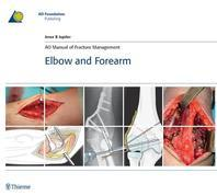 AO Manual of Fracture Management: Elbow & Forearm: Elbow & Forearm
