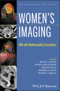 Women's Imaging: MRI with Multimodality Correlation