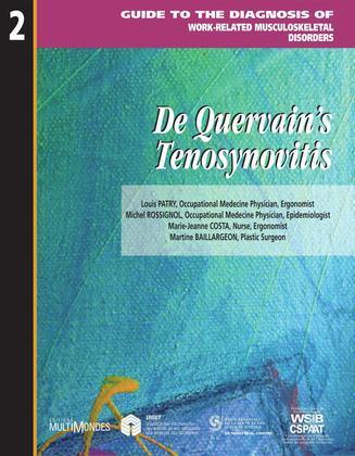 De Quervain's tenosynovitis