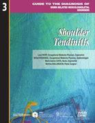 Shoulder tendinitis