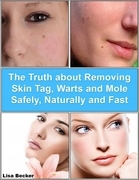 The Truth About Removing Skin Tag, Warts and Mole Safely, Naturally and Fast
