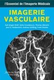 L'essentiel de l'imagerie médicale : Imagerie vasculaire