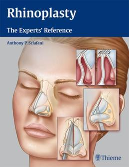 Rhinoplasty: The Experts' Reference