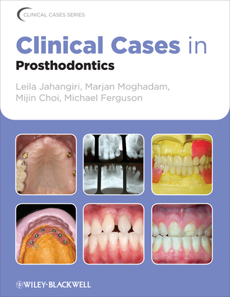 Clinical Cases in Prosthodontics