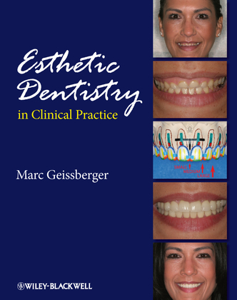 Esthetic Dentistry in Clinical Practice