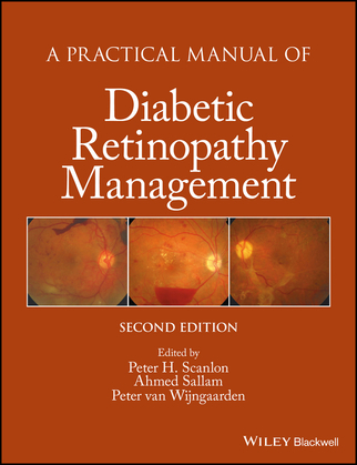 A Practical Manual of Diabetic Retinopathy Management