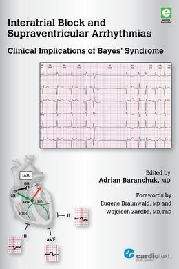 Interatrial Block and Supraventricular Arrhythmias: Clinical Implications of Bayés' Syndrome