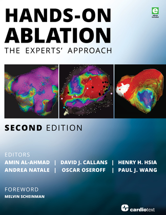 Hands-On Ablation