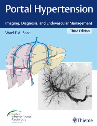 Portal Hypertension: Imaging, Diagnosis, and Endovascular Management