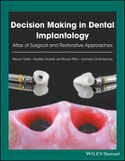 Decision Making in Dental Implantology