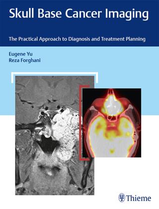 Skull Base Cancer Imaging