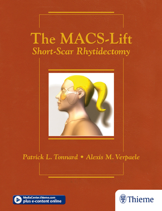 The MACS-Lift