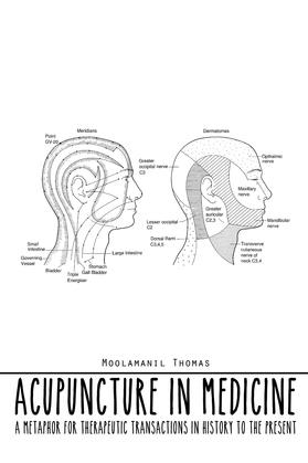Acupuncture in Medicine