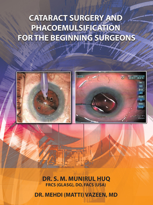 Cataract Surgery and Phacoemulsification for the Beginning   Surgeons