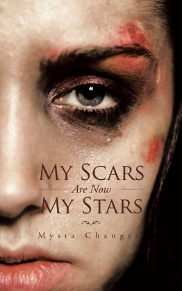 My Scars Are Now My Stars